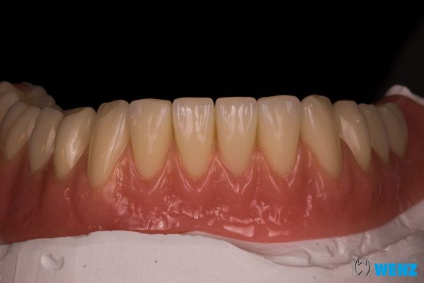 dentalllabor-wenzoliver-wenz-10604982A6-1B1E-AB86-8C49-C6B122250DA9.jpg