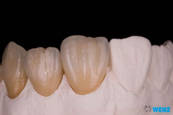 dentalllabor-wenzoliver-wenz-11318EF19A-ED2E-5A1C-EC08-ACD3DE7DB840.jpg