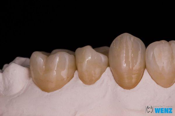 dentalllabor-wenzoliver-wenz-122C379945-0353-96F6-9CFA-AA7315BBE676.jpg