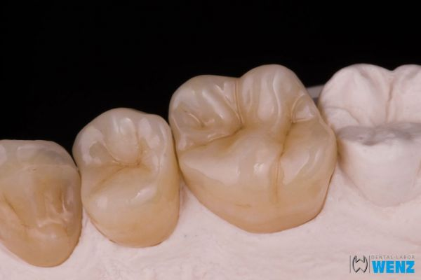 dentalllabor-wenzoliver-wenz-13216F7104-EDE0-B97B-9022-AB1D953F5383.jpg