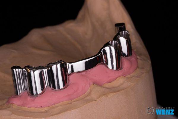 dentalllabor-wenzoliver-wenz-15-14B5146FD-CC6E-7B21-A9F3-A0BE01C08904.jpg