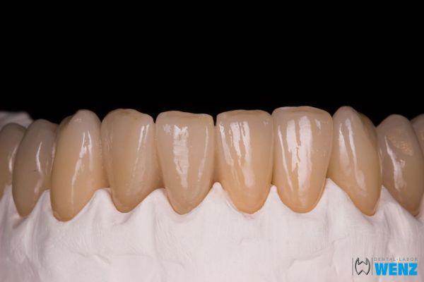 dentalllabor-wenzoliver-wenz-178ABBA2B4-AC5F-A341-4F66-6F45045C0C8B.jpg