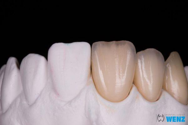 dentalllabor-wenzoliver-wenz-20D2B1B345-6D06-31A1-7609-AA44B7168382.jpg