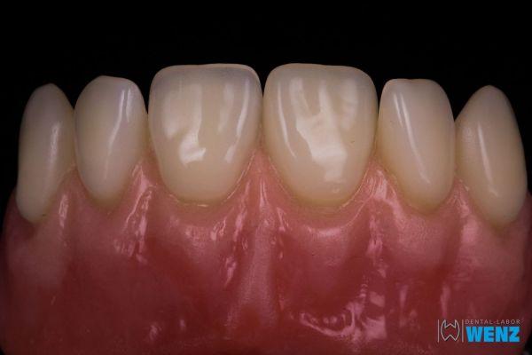 dentalllabor-wenzoliver-wenz-24246576B1-FDFB-F3D0-552B-AAB481FFAA95.jpg
