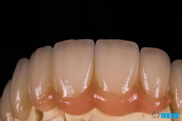 dentalllabor-wenzoliver-wenz-463E32258-6FCA-B55A-9310-DB3CE0AE17AC.jpg