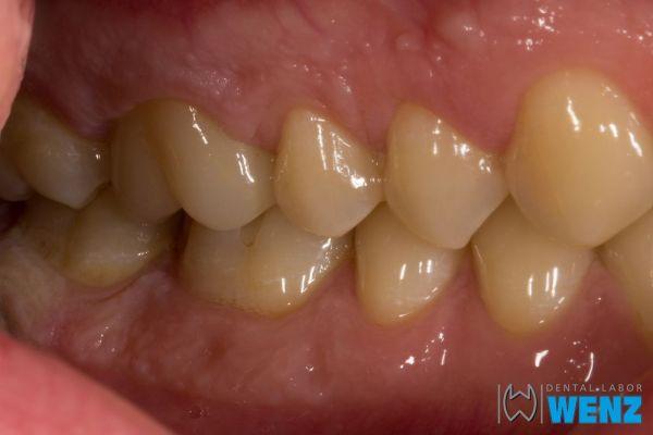 dentalllabor-wenzoliver-wenz-7583FFE9C-539A-1A44-0ADA-1DA2C27387B6.jpg