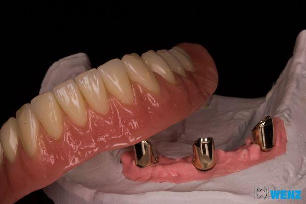 dentalllabor-wenzoliver-wenz-8EFE0C61F-7E7A-D051-5B73-F4E10459F959.jpg